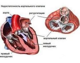 Недостатність аортального клапана фото