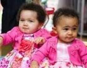 Незвичайні великобританський дівчинки-близнючки фото