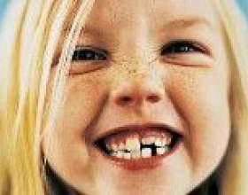Неправильний прикус зубів фото