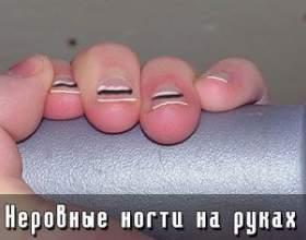 Нерівні нігті на руках фото