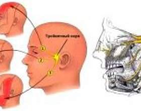 Невралгія лицьового нерва: симптоми, лікування фото