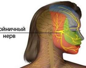Невралгія трійчастого нерва - симптоми, лікування фото