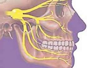 Невралгія трійчастого нерва фото