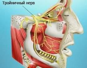 Неврит трійчастого нерва фото