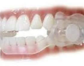 Нічний скрегіт зубами - причини, лікування фото