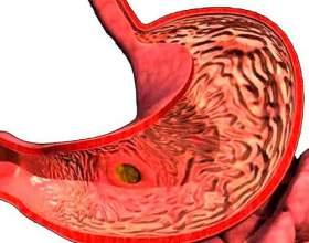 Загострення гастриту: симптоми фото