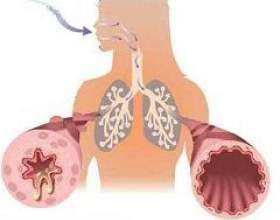 Обструкція дихальних шляхів фото