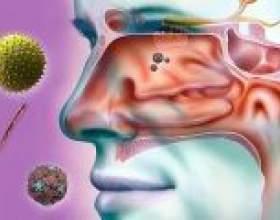 Одонтогенний верхньощелепної синусит, симптоми, лікування фото
