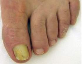 Оніхомікоз нігтів - лікування оніхомікозу у дітей і у дорослих фото