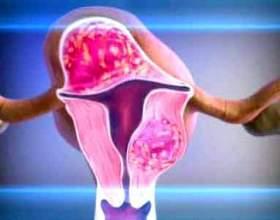 Операція з видалення міоми матки фото