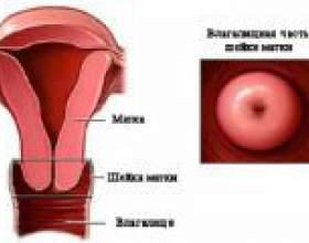 Опущення шийки матки, симптоми, лікування фото