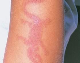 Особливості алергічних проявів дерматиту фото