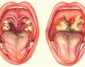Гострий фарингіт - симптоми та лікування гострого фарингіту фото