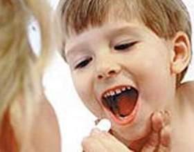 Гострий тонзиліт - симптоми і лікування фото