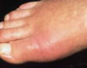 Набряк пальців ніг, що робити? фото