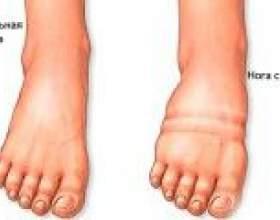 Набрякають ноги внизу: причини, лікування фото