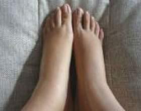 Набряки ніг після пологів, що робити? фото