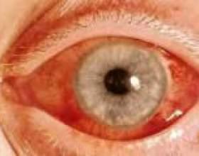 Відкритокутова глаукома: симптоми і лікування фото