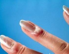 Пароніхія (нігтьова інфекція) - причини, симптоми і лікування фото