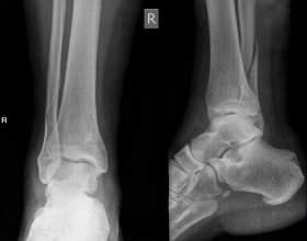 Перелом щиколотки зі зміщенням: симптоми і лікування фото