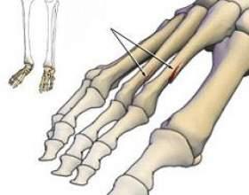 Перелом пальця ноги фото