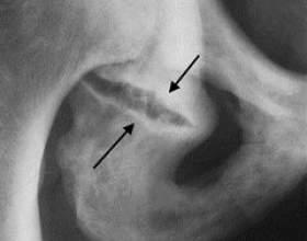 Перелом сідничної кістки фото