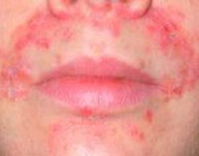 Періоральний дерматит - лікування, симптоми, ознаки фото