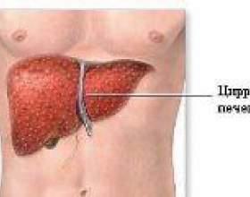 Перші ознаки цирозу печінки фото