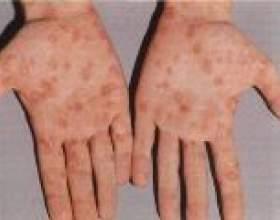 Перші ознаки і симптоми сифілісу фото