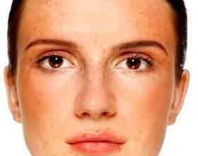 Пігментні плями на обличчі фото