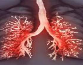 Плеврит легких - симптоми і методи лікування плевриту фото