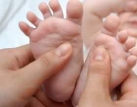 Плоскостопість у дітей, причини, лікування фото