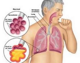 Пневмонія фото