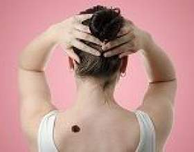 Чому болить родимка, небезпечно це? фото