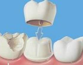 Чому болить зуб під пломбою? фото