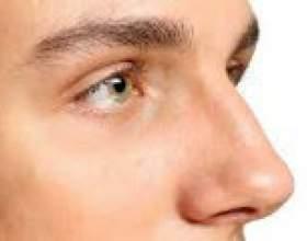 Чому німіє ніс? Кінчик носа? Причини фото