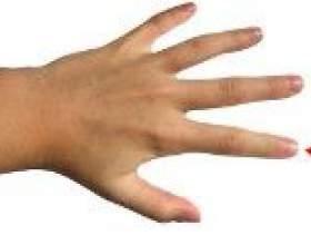 Чому німіє вказівний палець правої руки? фото