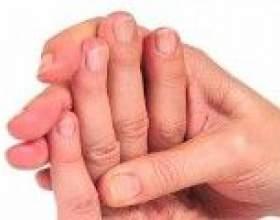 Чому німіють пальці лівої руки, причини фото