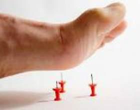 Чому німіють пальці на правій нозі? фото