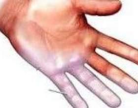 Чому німіють пальці на руках? фото