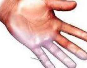 Чому німіють пальці правої руки, причини фото