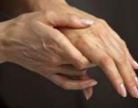 Чому німіють руки при вагітності? фото