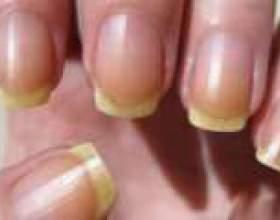 Чому жовтіють нігті на руках? фото