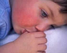 Почервоніння на щічках, що з`явилися після прийому антибіотиків фото