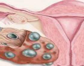 Полікістоз яєчників - лікування народними засобами фото