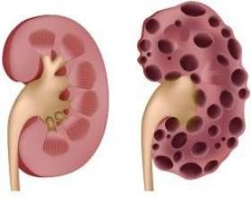 Полікістоз нирок - причини, симптоми і лікування фото