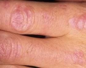 Поліміозит - причини, симптоми і лікування фото