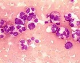 Знижені нейтрофіли в крові, причини, лікування фото