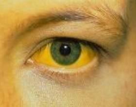 При якому гепатиті розвивається жовтяниця? фото