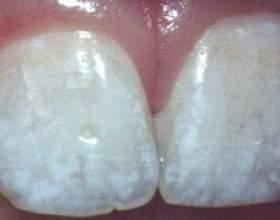 Причини білих плям на зубах фото